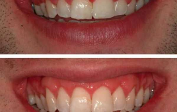 Five ways to Maintain your Gum Health