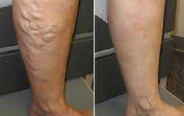 What Are The Significant Factors To Consider While Locating A Vein Center?