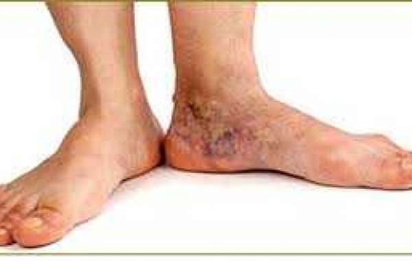 Introduction To Spider Vein Disease: Symptoms And Treatment