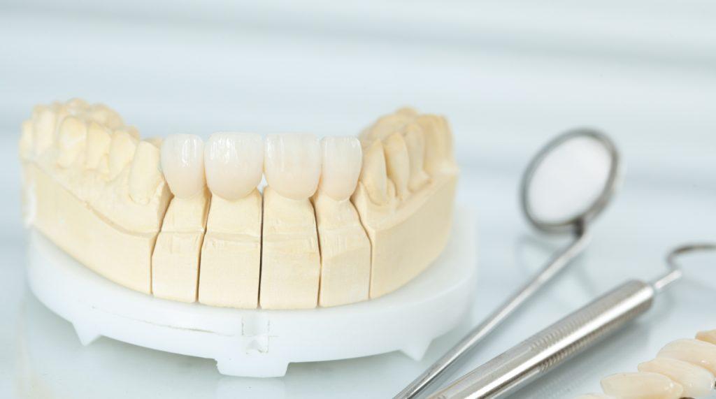 Dental Veneers Clute, TX | Affordable Porcelain Dental Veneers Near Me