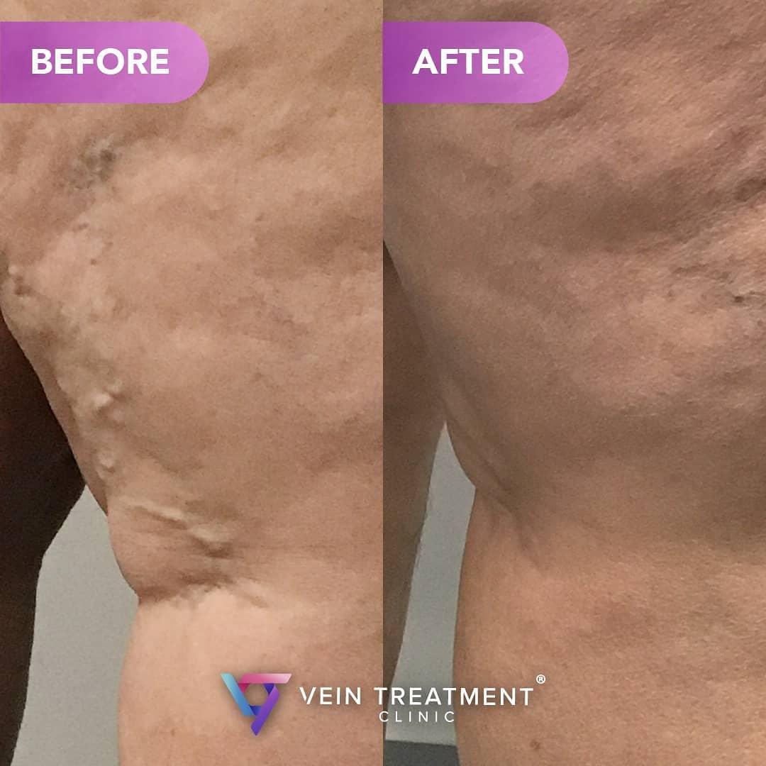 Vein Treatment Doctor