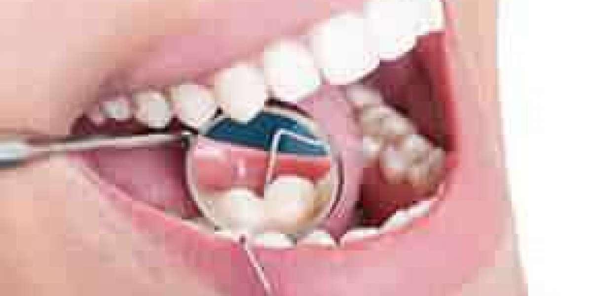 Advanced Cosmetic Dental Treatments - AK Global Dent